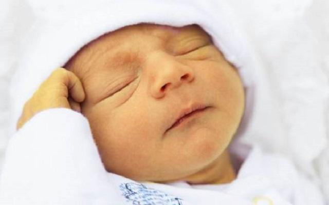 علت زردی گرفتن نوزاد و درمان آن